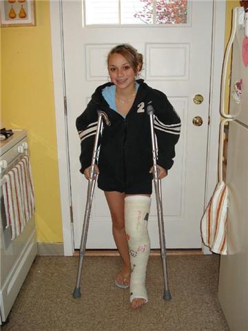 Pin by LAK Ampcast on Leg Cast | Long leg cast, Leg cast ...