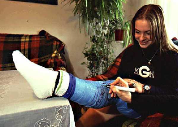 Girl With Leg Cast